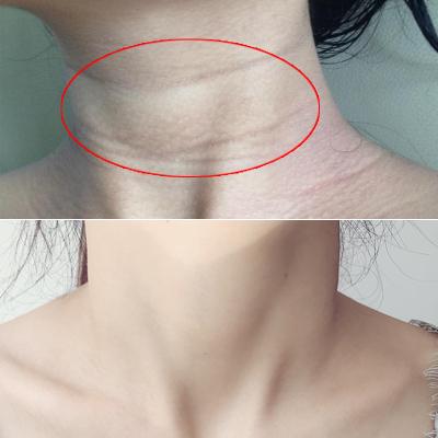 【李佳琦推薦】雙滾輪美頸霜提拉緊致按摩儀去頸紋神器勁頸部護理 精選特買